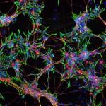 Dividingneuralcells